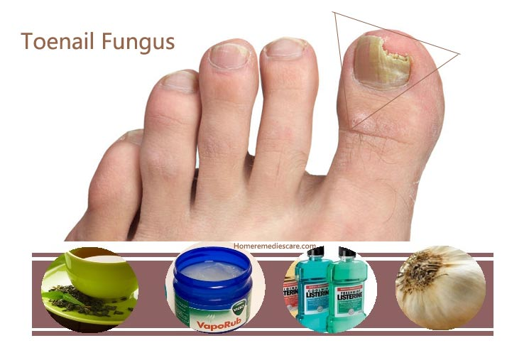 What We Need To Know About Fungal Infection - Celebrity Plastic Surgery
